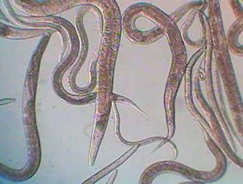 Micro-Worms (Anguillula Silusiae)